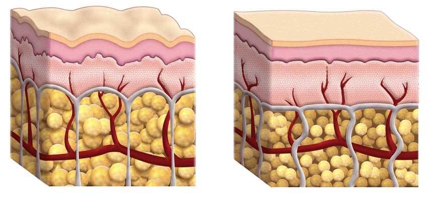 Scientific illustration of the appearance of cellulite