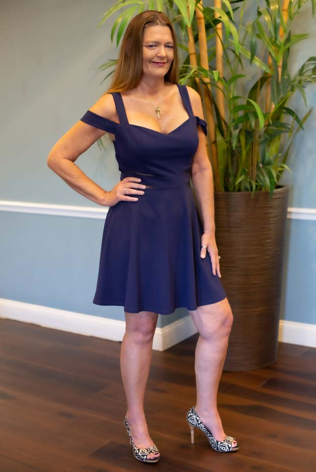 Between the weight loss program and 12 green laser treatments, I lost 13 inches in my thighs.